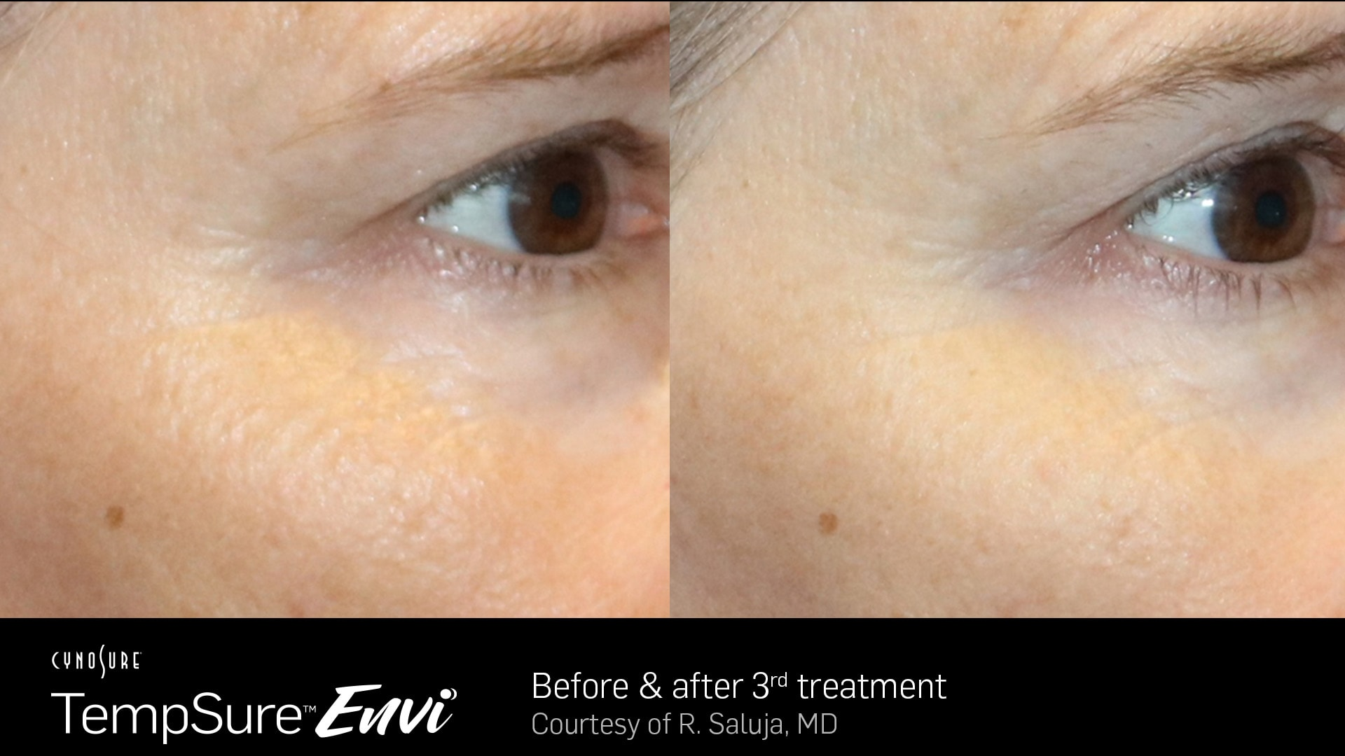 TempSure-Envi-Before-and-After1