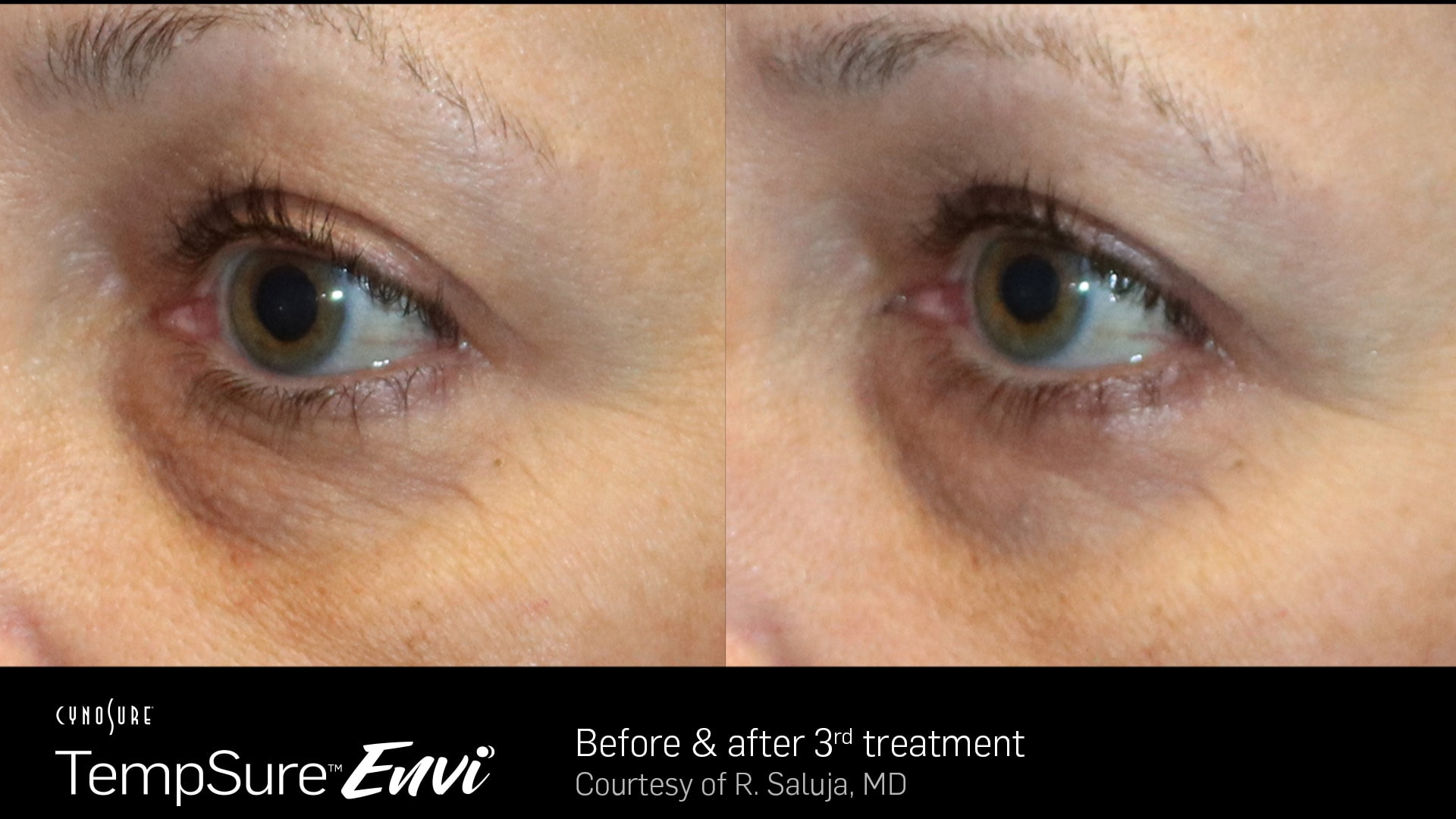 TempSure-Envi-Before-and-After3