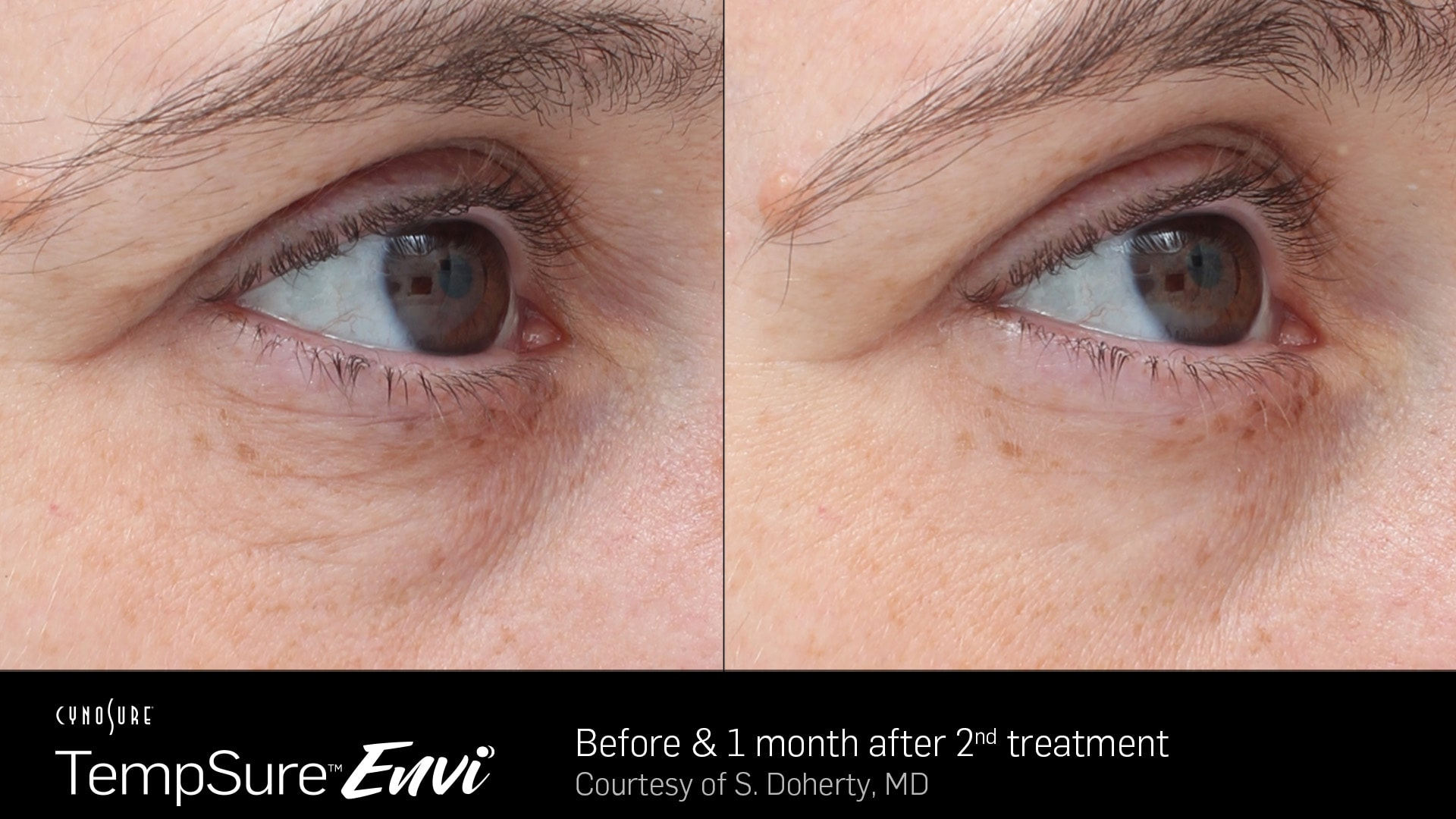 TempSure-Envi-Before-and-After4