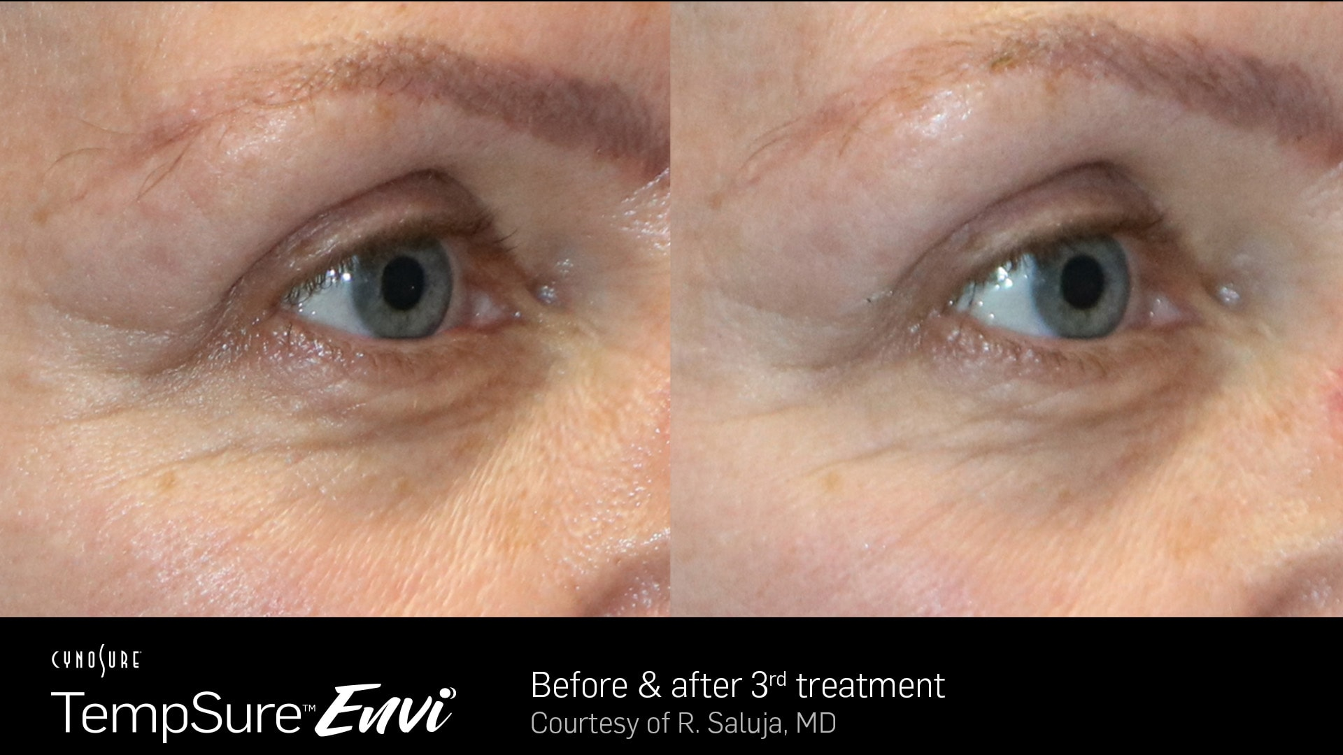 TempSure-Envi-Before-and-After5